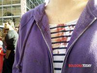 ferita manifestante